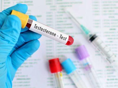 Einfache Praxistipps zur Steigerung des Testosteronspiegels