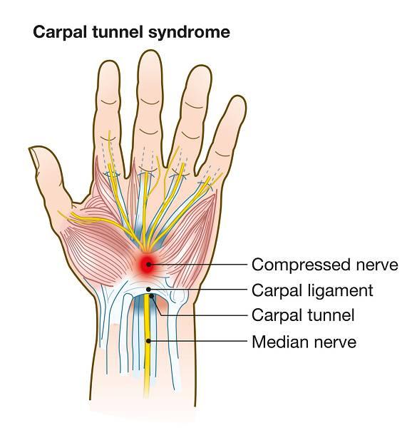 Das Karpaltunnelsyndrom (KTS) ist ein medizinischer Zustand, der durch eine Kompression des Median-Nervs zustande kommt, welcher am Handgelenk und unter dem Karpaltunnel entlang verläuft. Dies führt zu einem unangenehmen Taubheitsgefühl oder gar Schmerz im Handgelenk.