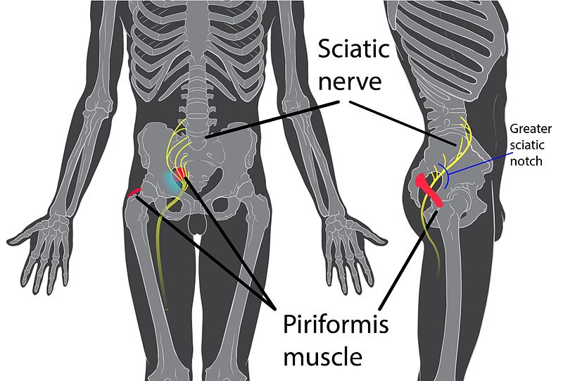 Sitz des Piriformis-Muskels sowie Verlauf des Ischaisnervs (Sciatic nerve).
