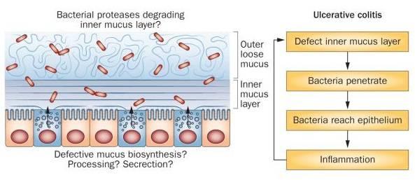 Modell der Mechanismen, welche die Eigenschaften der inneren Schleimschicht beeinflussen und möglicherweise eine Colitis ulcerosa verursachen können. Die innere Schleimschicht trennt normalerweise die Bakterien von den Epithelzellen. Fehlt diese innere Schleimschicht oder ist sie für Bakterien durchlässig, steigt die Belastung des Epithels mit Bakterien, was eine Immunreaktion des subepithelialen Immunsystems auslöst. (Bildquelle: Johansson et al., 2013)