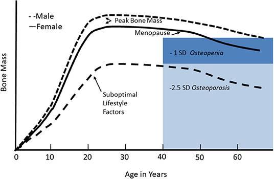 Veränderungen der Knochenmineralmasse im Laufe des Lebenszyklus: Die Knochenmineralmasse nimmt während des Wachstums zu und erreicht im jungen Erwachsenenalter ein Plateau, das als Spitzenknochenmasse bezeichnet wird. Frauen verlieren in den ersten Jahren des Übergangs zur Menopause rasch an Knochenmasse, und sowohl Männer als auch Frauen verlieren dann im Alter allmählich weiter an Knochenmasse. Bei Erwachsenen ist eine niedrige Knochenmasse oder Osteopenie definiert als 1 bis 2,5 Standardabweichungen unter der maximalen Knochenmasse; Osteoporose ist definiert als Knochenmasse < 2,5 Standardabweichungen unter der maximalen Knochenmasse. Wenn bei suboptimalen Lebensstilfaktoren keine optimale Spitzenknochenmasse erreicht wird, verringert sich das Alter für das Auftreten von Osteopenie oder Osteoporose angesichts der üblichen altersbedingten Knochenmasse. (Bildquelle: Kralick & Zemel, 2020, adaptiert nach Weaver et al. )