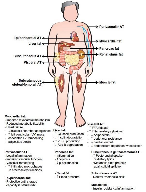 Abnormitäten, die das Risiko von Herz-Kreislauf-Erkrankungen bei übergewichtigen/fettleibigen Personen mit überschüssigem viszeralem Fettgewebe/ektopischem Fett erhöhen. Apo = Apolipoprotein; FFA = Freie Fettsäuren; AT = adipöses Gewebe. (Bildquelle: Bastien et al., 2014)
